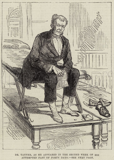 Dr Tanner, as he appeared in the Second Week of his attempted Fast of Forty Days